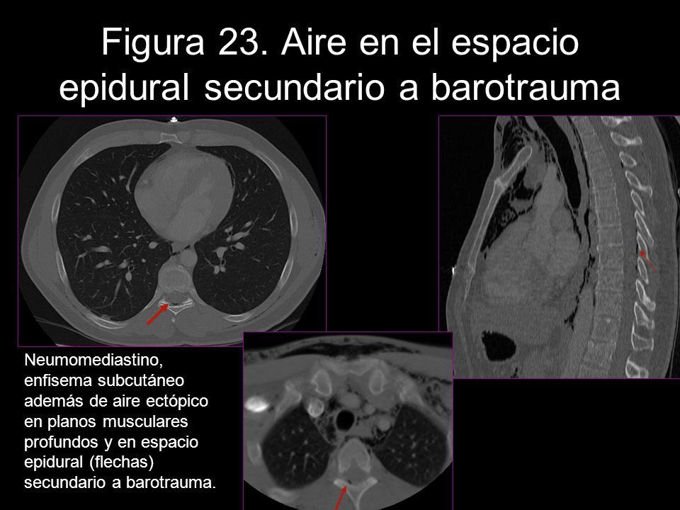 Figura 23. Aire en el espacio epidural secundario a barotrauma