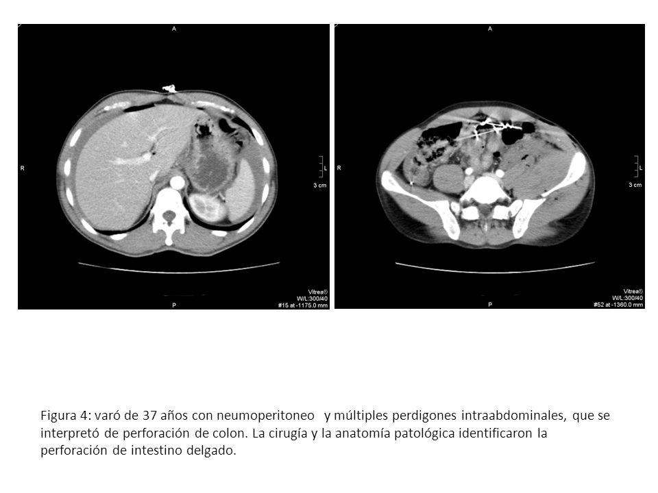 Figura 4: varó de 37 años con neumoperitoneo y múltiples perdigones intraabdominales, que se interpretó de perforación de colon.