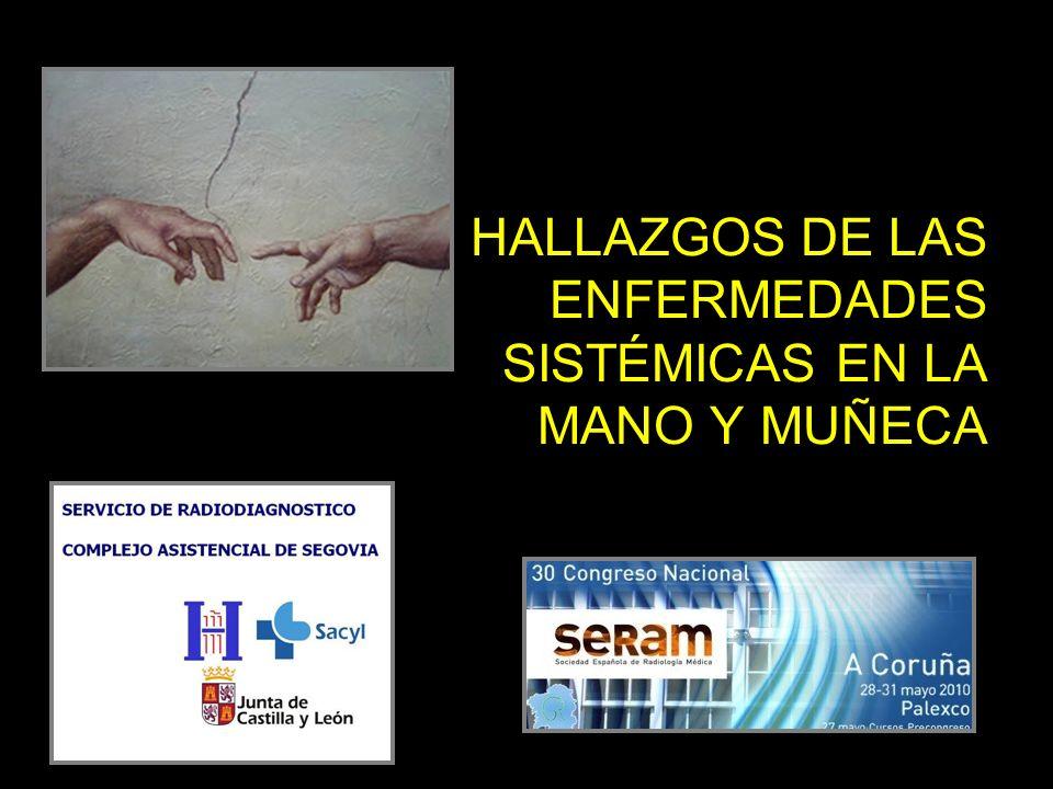 HALLAZGOS DE LAS ENFERMEDADES SISTÉMICAS EN LA MANO Y MUÑECA