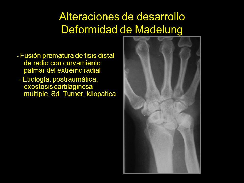 Alteraciones de desarrollo Deformidad de Madelung
