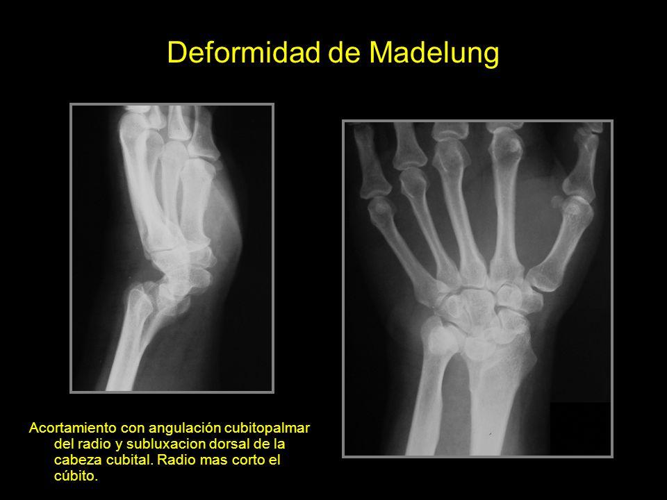 Deformidad de Madelung