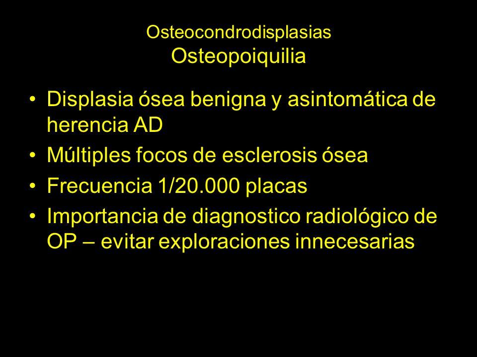 Osteocondrodisplasias Osteopoiquilia