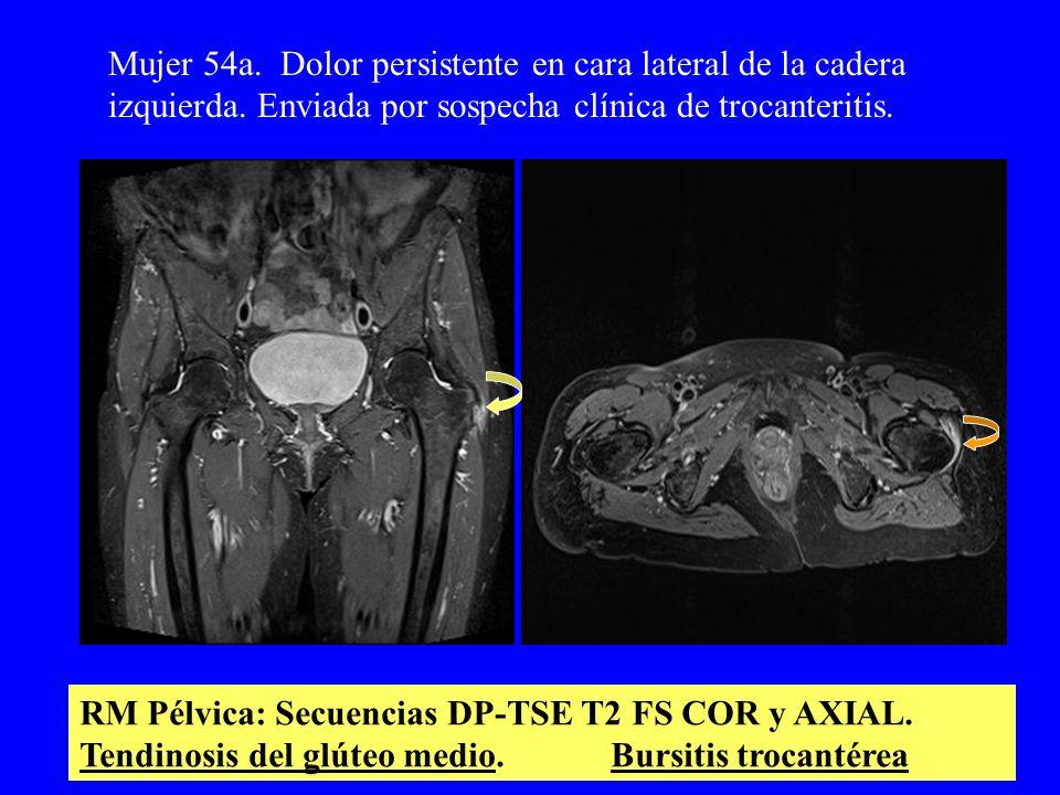 Mujer 54a. Dolor persistente en cara lateral de la cadera izquierda