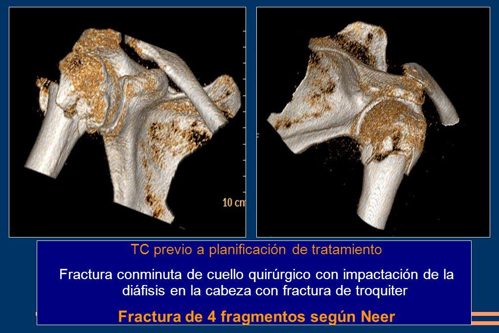 Fractura de 4 fragmentos según Neer