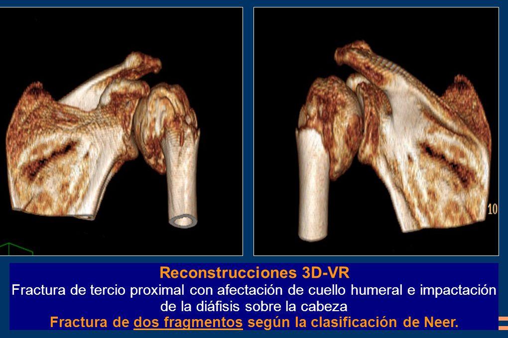 Reconstrucciones 3D-VR
