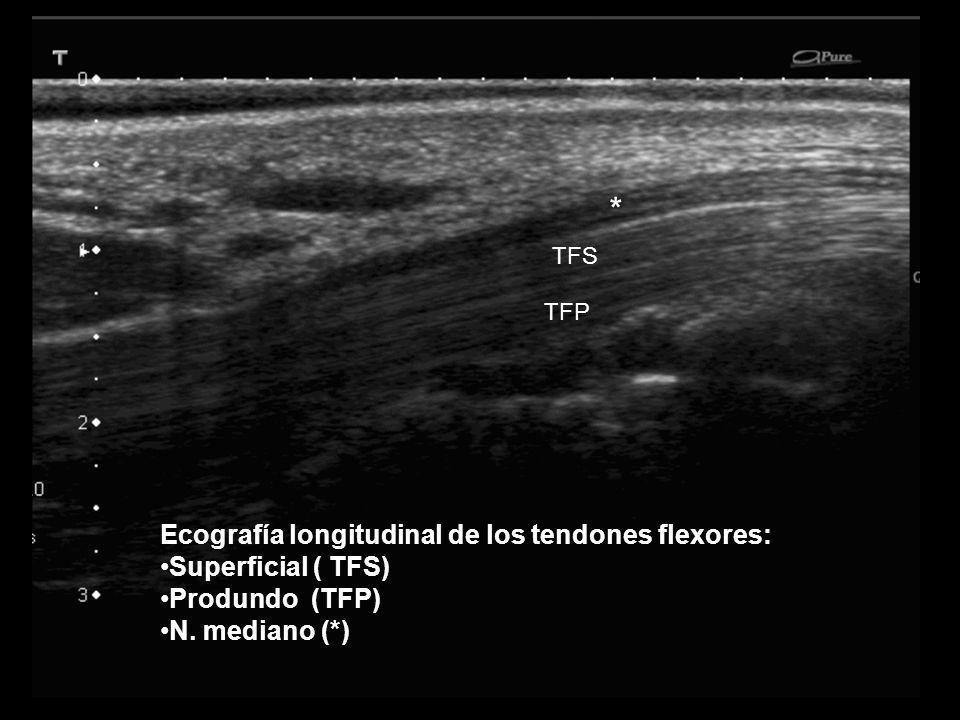 * Ecografía longitudinal de los tendones flexores: Superficial ( TFS)