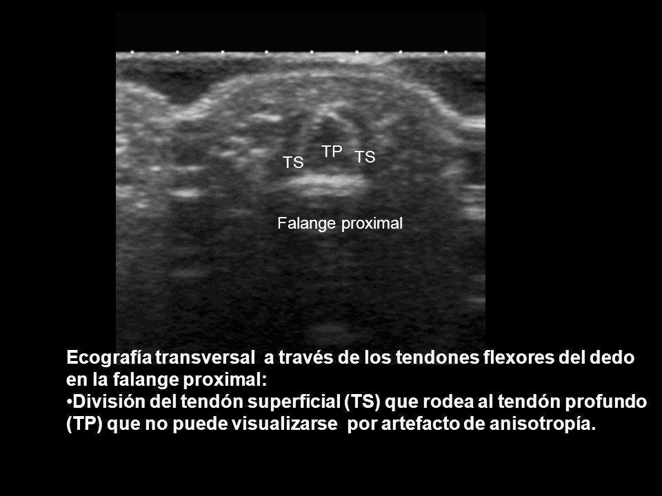 Ecografía transversal a través de los tendones flexores del dedo