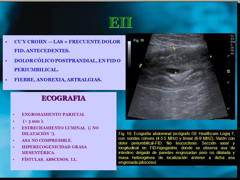 EII ECOGRAFIA CU Y CROHN → LAS + FRECUENTE DOLOR FID. ANTECEDENTES.