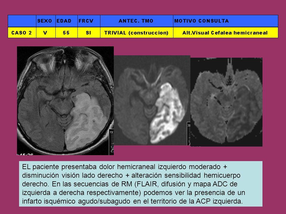 EL paciente presentaba dolor hemicraneal izquierdo moderado + disminución visión lado derecho + alteración sensibilidad hemicuerpo derecho.