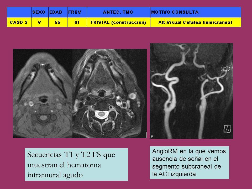 Secuencias T1 y T2 FS que muestran el hematoma intramural agudo
