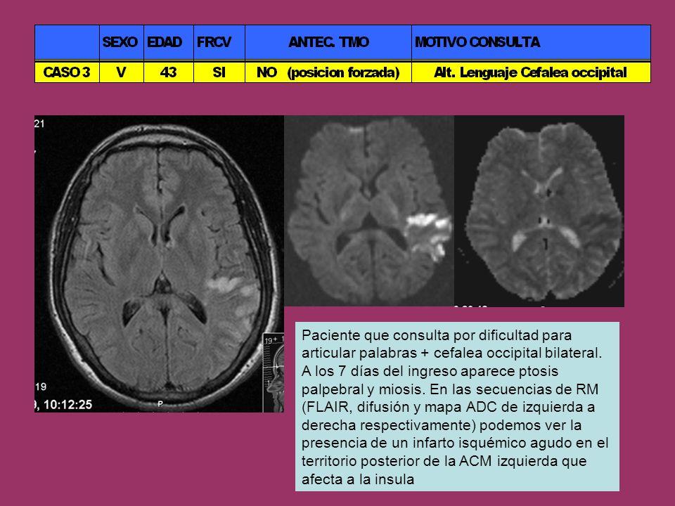 Paciente que consulta por dificultad para articular palabras + cefalea occipital bilateral.