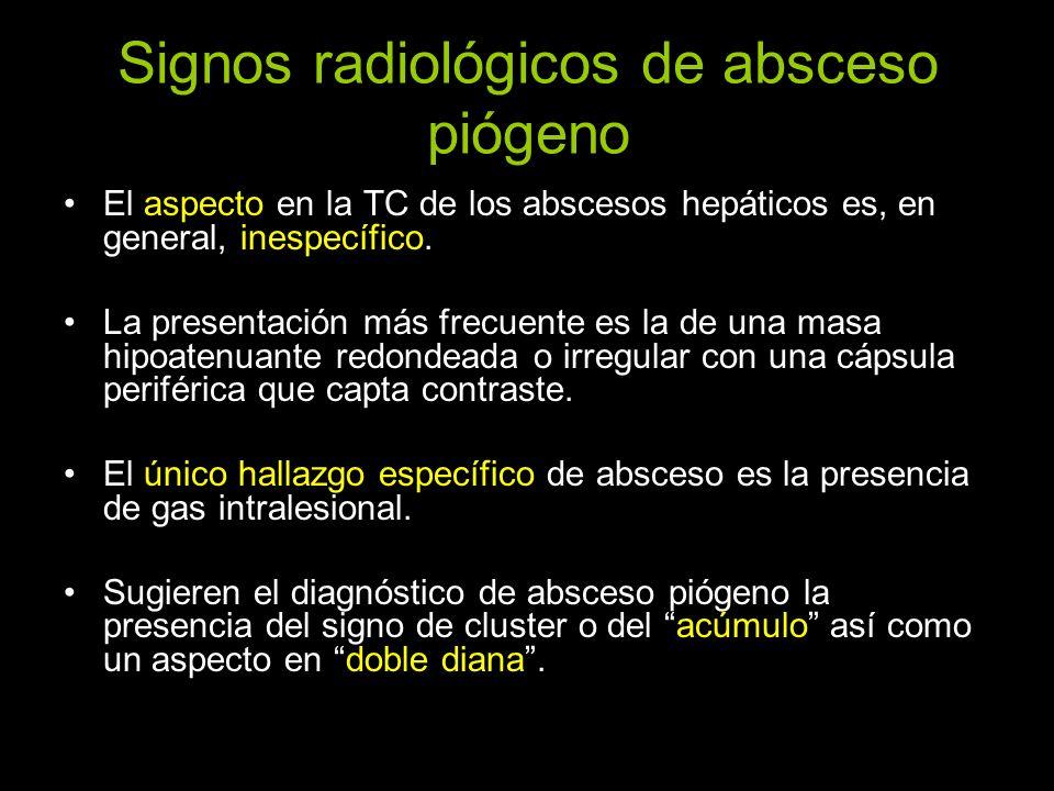 Signos radiológicos de absceso piógeno