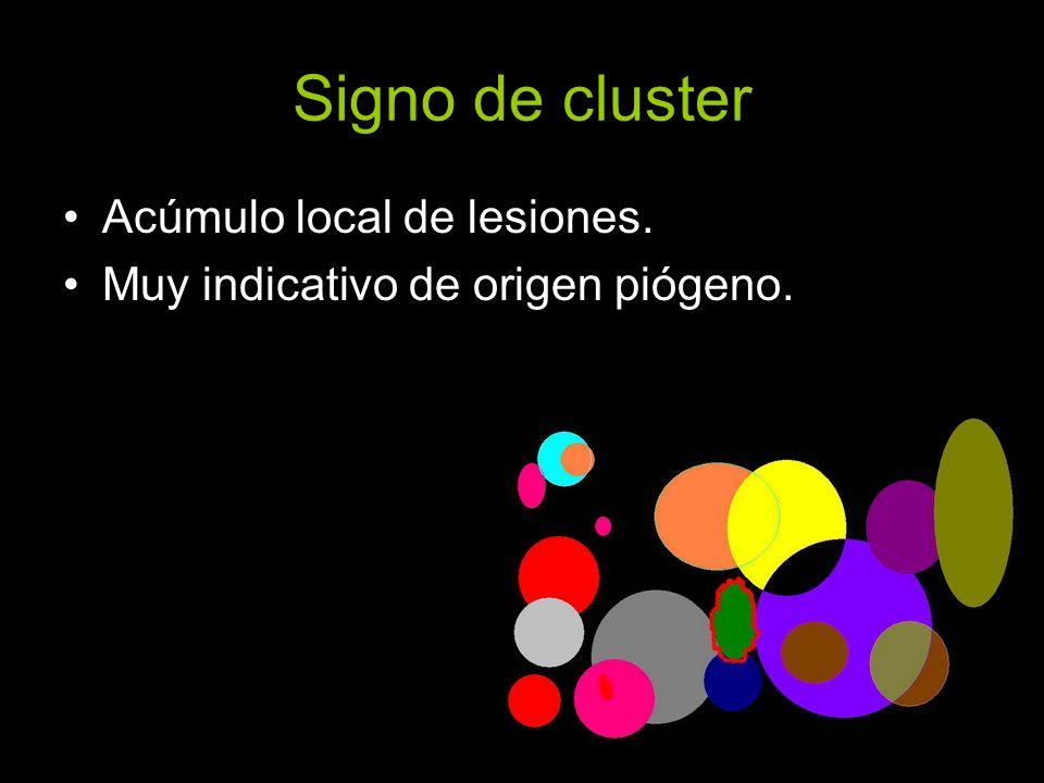 Signo de cluster Acúmulo local de lesiones.