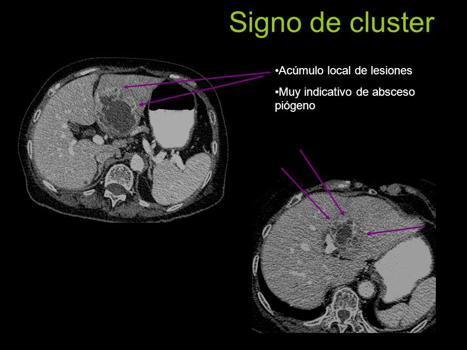 Signo de cluster Acúmulo local de lesiones