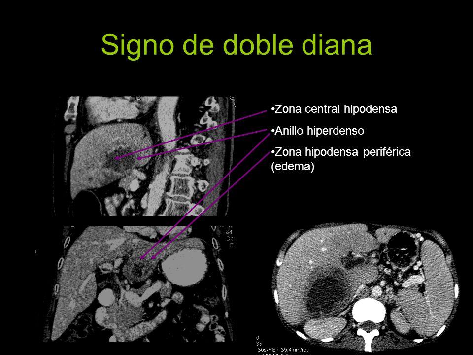 Signo de doble diana Zona central hipodensa Anillo hiperdenso