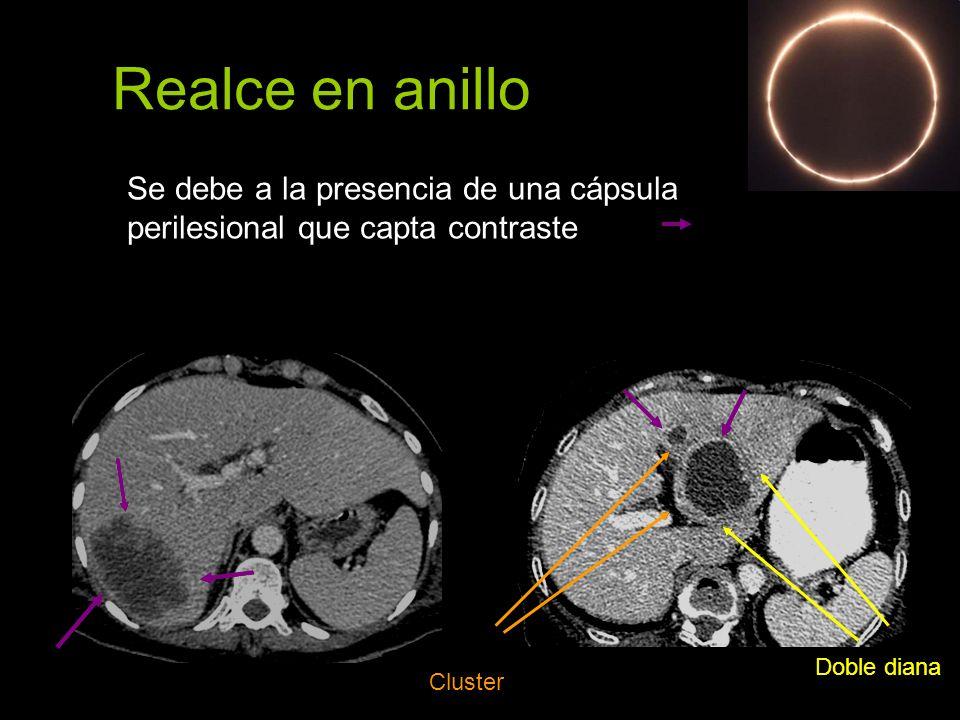 Realce en anillo Se debe a la presencia de una cápsula perilesional que capta contraste. Doble diana.