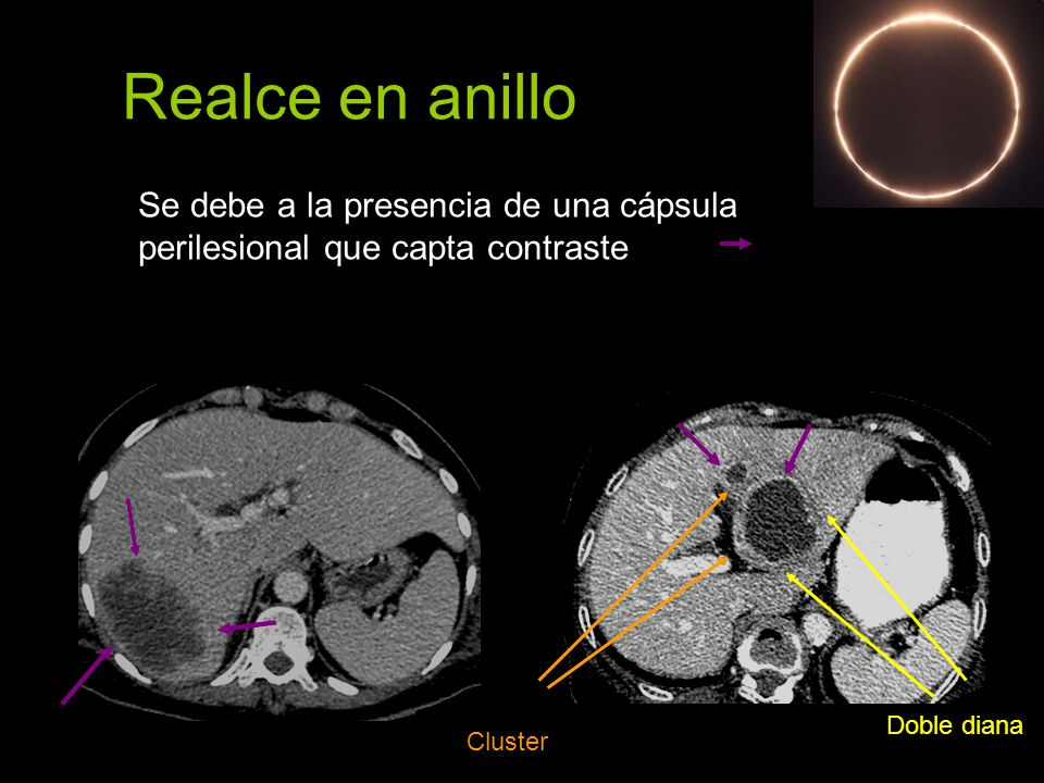 Realce en anilloSe debe a la presencia de una cápsula perilesional que capta contraste. Doble diana.
