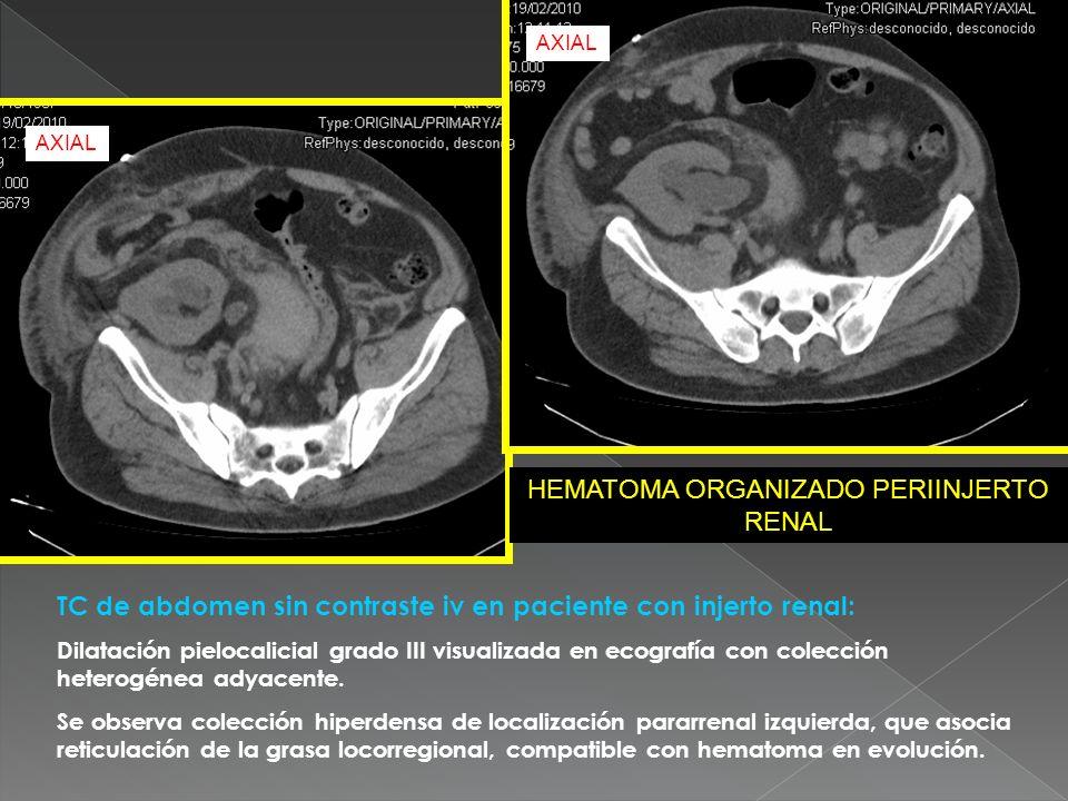 HEMATOMA ORGANIZADO PERIINJERTO RENAL