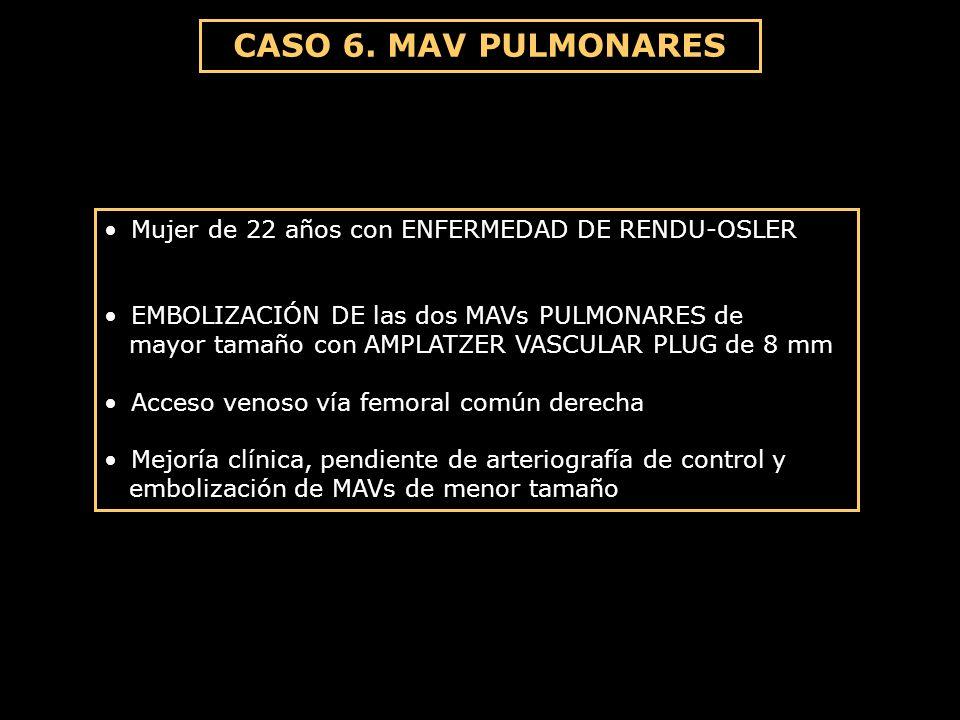 CASO 6. MAV PULMONARES Mujer de 22 años con ENFERMEDAD DE RENDU-OSLER