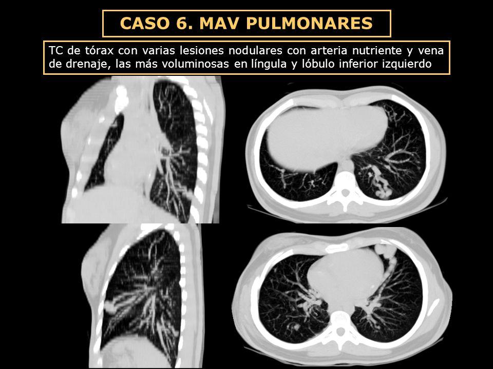 CASO 6. MAV PULMONARES