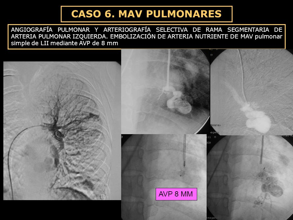 CASO 6. MAV PULMONARES AVP 8 MM