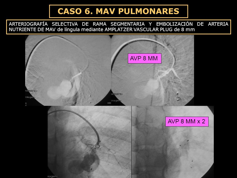 CASO 6. MAV PULMONARES AVP 8 MM AVP 8 MM x 2