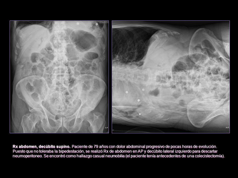 Rx abdomen, decúbito supino