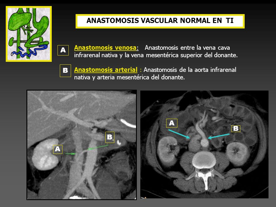 ANASTOMOSIS VASCULAR NORMAL EN TI
