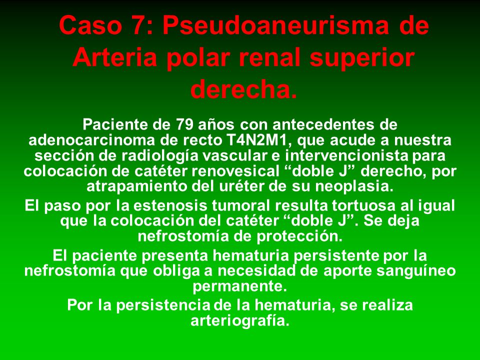 Caso 7: Pseudoaneurisma de Arteria polar renal superior derecha.