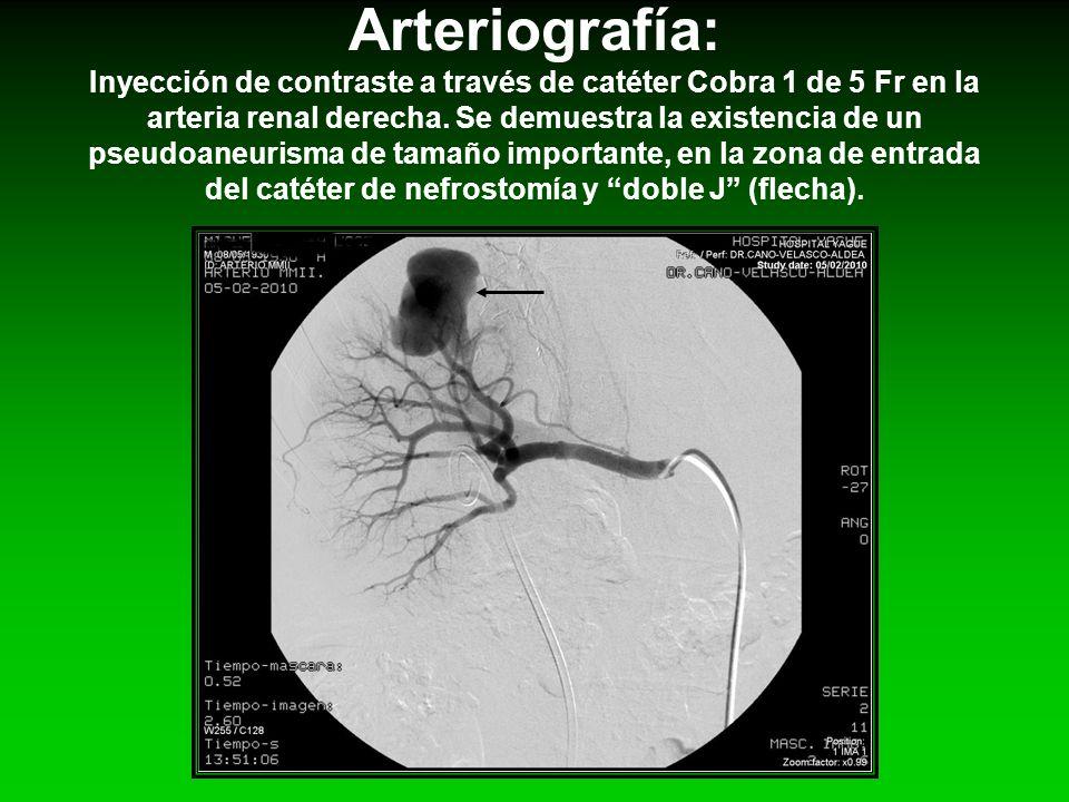 Arteriografía: Inyección de contraste a través de catéter Cobra 1 de 5 Fr en la arteria renal derecha.