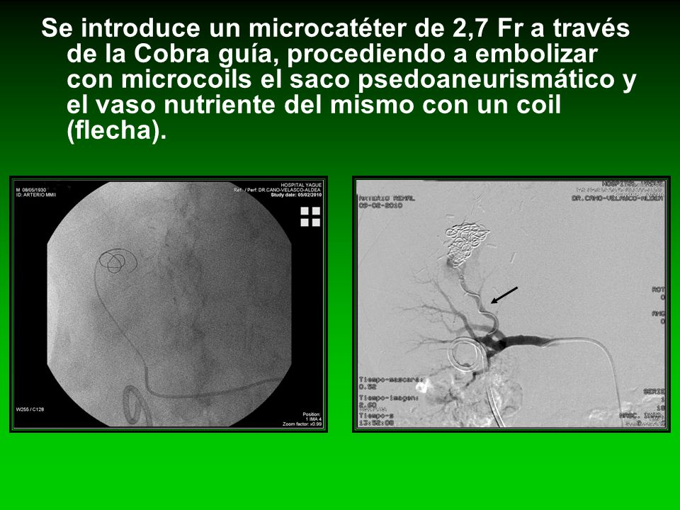 Se introduce un microcatéter de 2,7 Fr a través de la Cobra guía, procediendo a embolizar con microcoils el saco psedoaneurismático y el vaso nutriente del mismo con un coil (flecha).