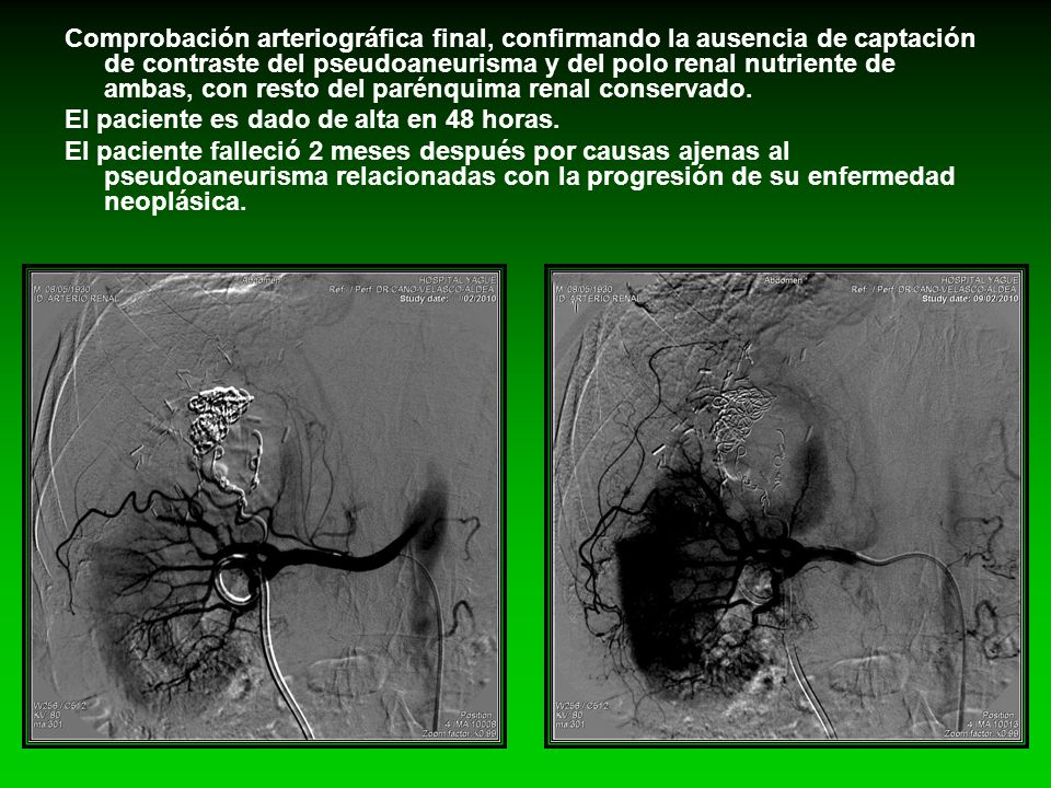 Comprobación arteriográfica final, confirmando la ausencia de captación de contraste del pseudoaneurisma y del polo renal nutriente de ambas, con resto del parénquima renal conservado.