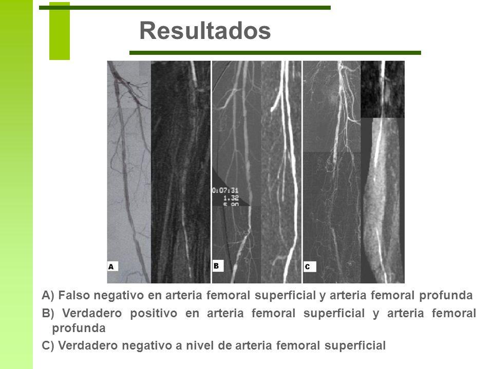 ResultadosA) Falso negativo en arteria femoral superficial y arteria femoral profunda.
