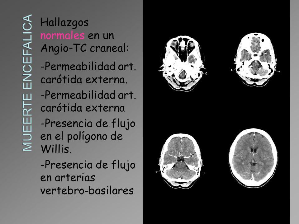MUEERTE ENCEFALICA Hallazgos normales en un Angio-TC craneal: