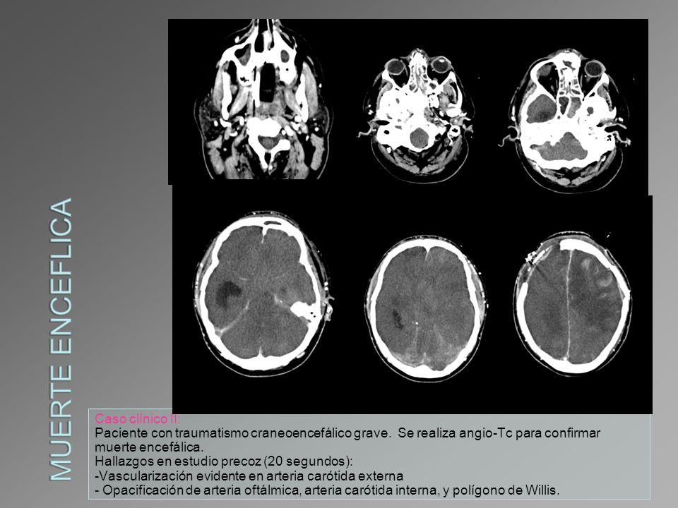 Muerte enceflica Caso clínico II:
