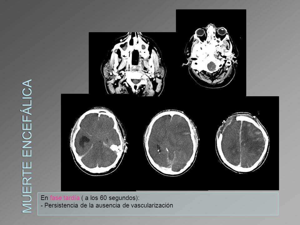 Muerte encefálica En fase tardía ( a los 60 segundos):
