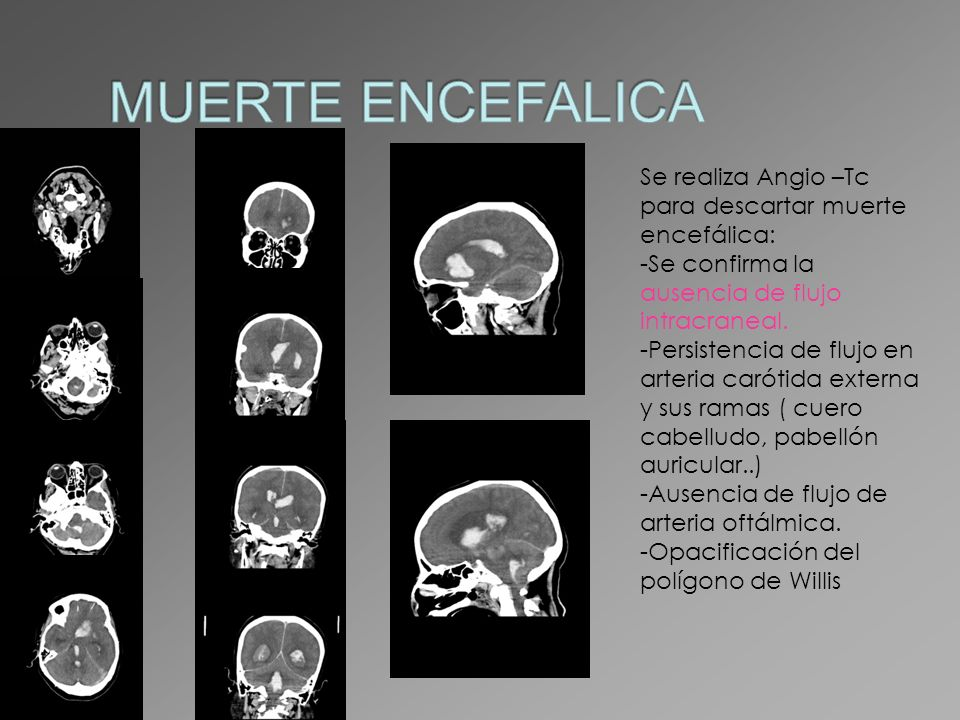 MUERTE ENCEFALICA Se realiza Angio –Tc para descartar muerte encefálica: Se confirma la ausencia de flujo intracraneal.