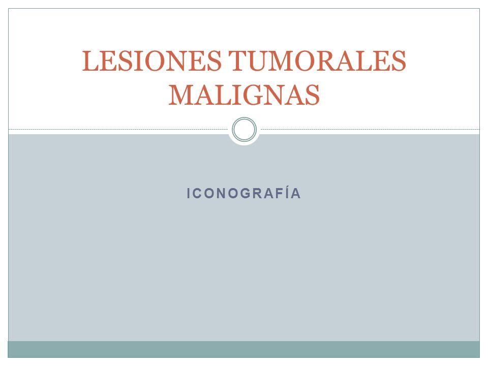 LESIONES TUMORALES MALIGNAS