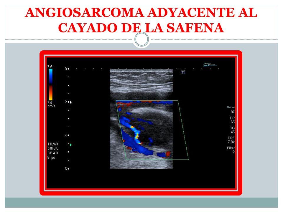 ANGIOSARCOMA ADYACENTE AL CAYADO DE LA SAFENA