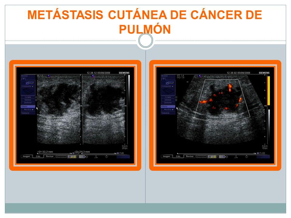 METÁSTASIS CUTÁNEA DE CÁNCER DE PULMÓN
