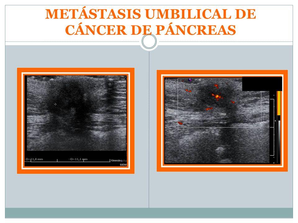 METÁSTASIS UMBILICAL DE CÁNCER DE PÁNCREAS