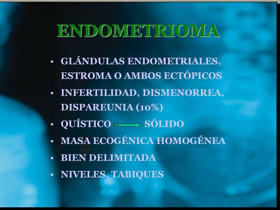 ENDOMETRIOMA GLÁNDULAS ENDOMETRIALES, ESTROMA O AMBOS ECTÓPICOS