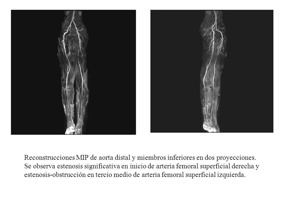 Reconstrucciones MIP de aorta distal y miembros inferiores en dos proyecciones.