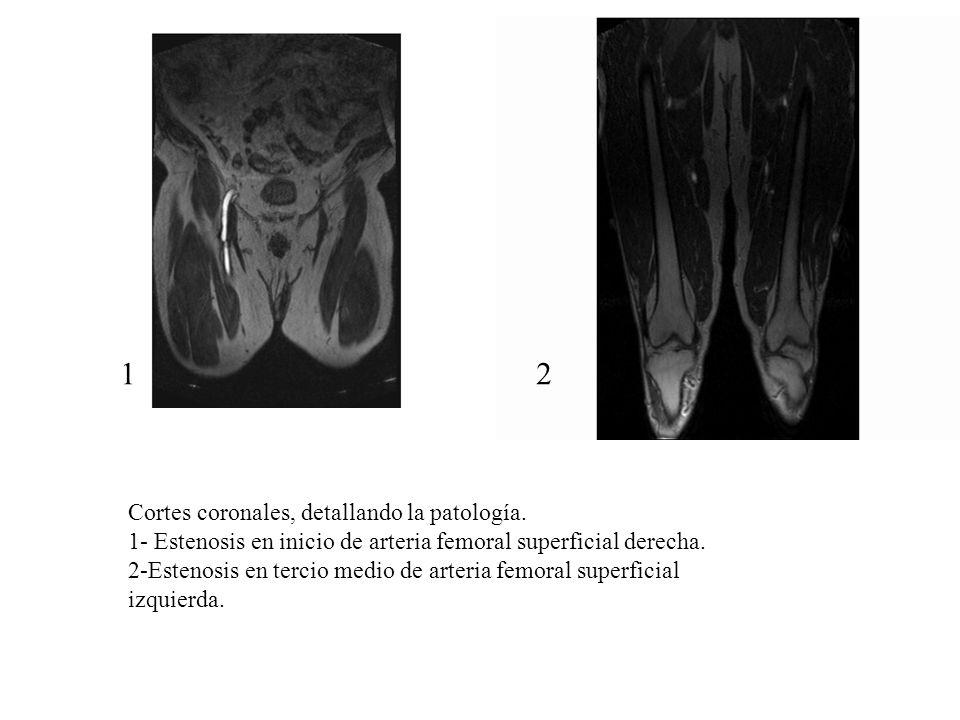 1 2 Cortes coronales, detallando la patología.