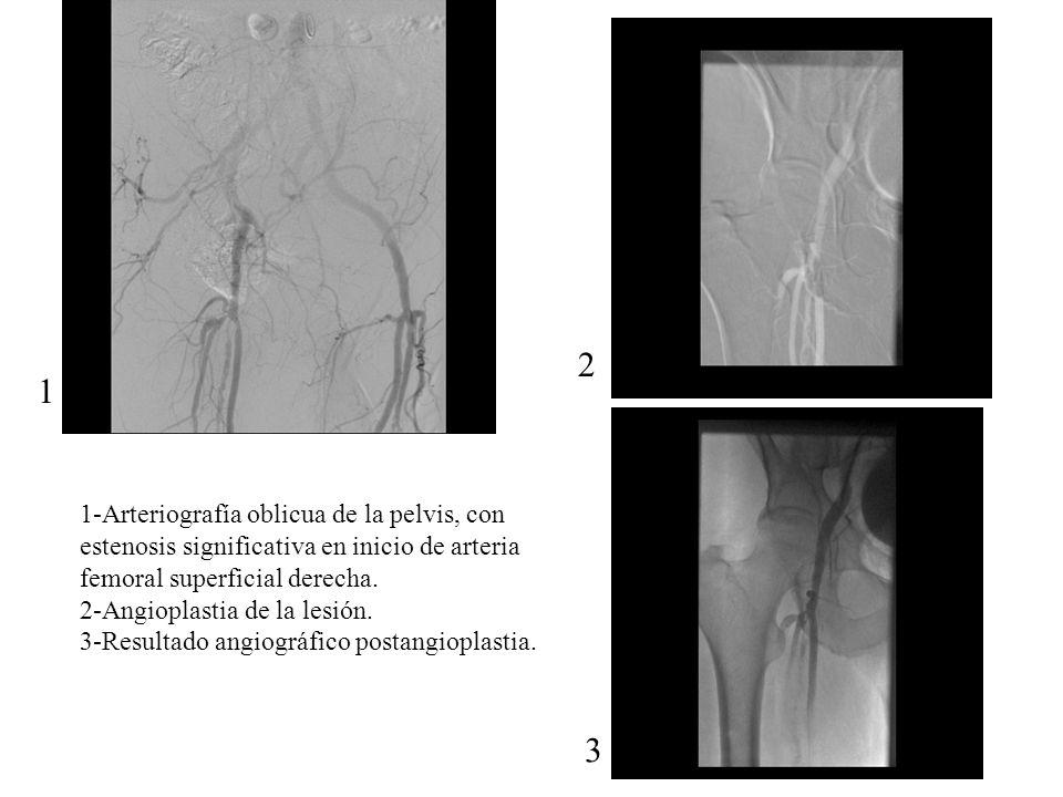 2 1 3 1-Arteriografía oblicua de la pelvis, con