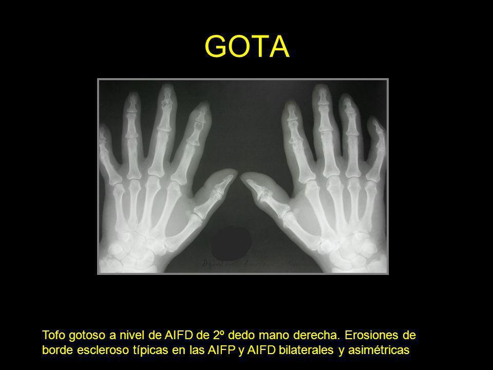 GOTATofo gotoso a nivel de AIFD de 2º dedo mano derecha.