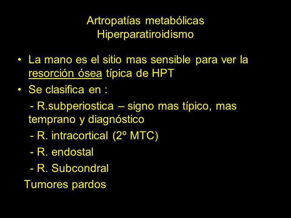 Artropatías metabólicas Hiperparatiroidismo