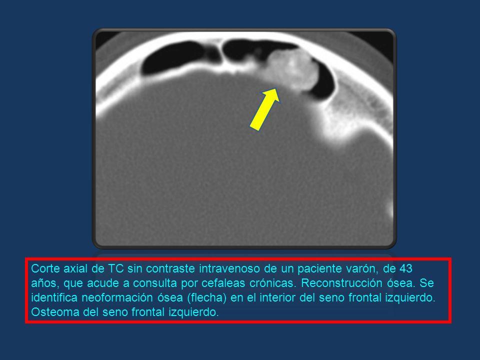 Corte axial de TC sin contraste intravenoso de un paciente varón, de 43 años, que acude a consulta por cefaleas crónicas.