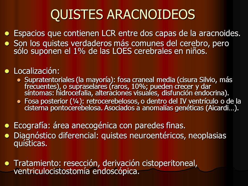 QUISTES ARACNOIDEOS Espacios que contienen LCR entre dos capas de la aracnoides.