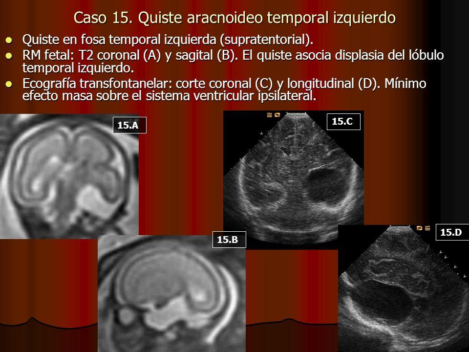 Caso 15. Quiste aracnoideo temporal izquierdo